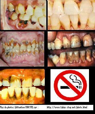 Comme se comporte lorganisme a cessé de fumer