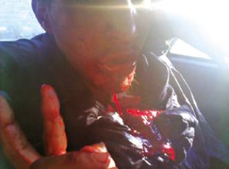 Des images « effroyables » du carnage perpétré par l'armée Marocaine à El Ayoun