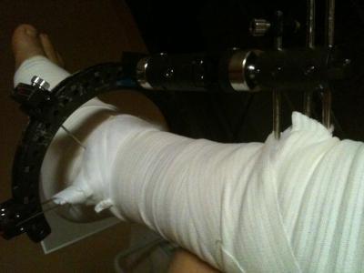 Notre camarade membre du cvld Werner Zeller vient de se casser méchamment la jambe...