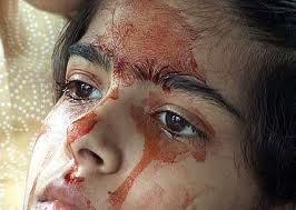 Twinkle Dwivedi saigne sans blessures
