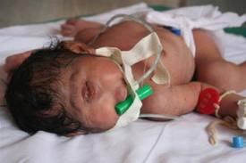 Insolite ; Bébé cyclope né à Santa Cruz  Bolivie