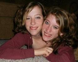 Que pensez vous de Abigail et Brittany Hensel  ( Deux têtes et un seul corps )