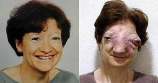 Chantal Sébire ( maladie rare )