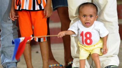 Le plus petit homme au monde ( Junrey Balawing  )