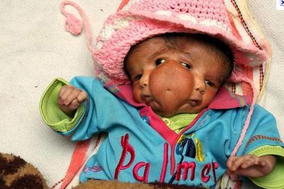 Que pensez vous du bébé à deux visages ( inde )