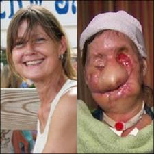 Insolite :Charla Nash attaquée par un singe, elle est défigurée