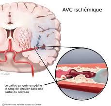 Que pensez vous des accident vasculaire cérébral (AVC)