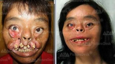 Insolite : Kang Sangmu a vécu 36 ans sans visage...