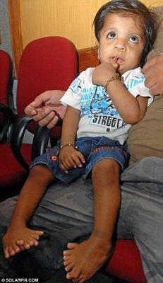 Akshat Saxena naît avec 14 doigts et 20 orteils