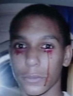 Calvino Inman pleure des larmes de sang