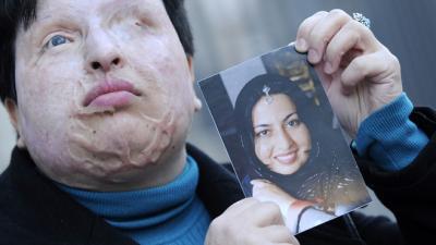 Ameneh Bahrami aveuglée à l'acide renonce à la loi du talion