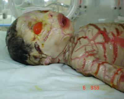 Le Syndrome Arlequin ou Bébé Collodion ( Maladies rares )