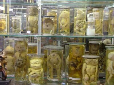 Le musée Dupuytren