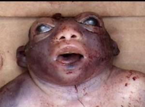 Insolite : Malformation Le bébé grenouille