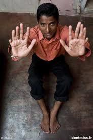 Heramb Ashok Kumthekar l'homme aux 12 doigts et aux 14 orteils